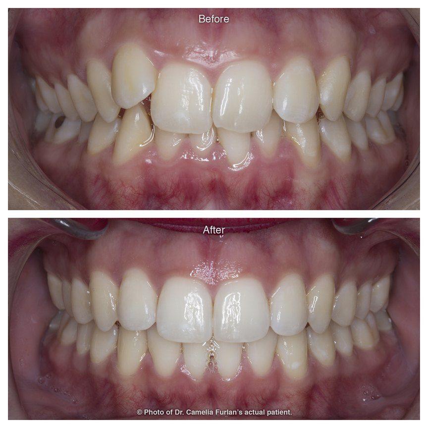 Misaligned Teeth Fixed With Orthodontics