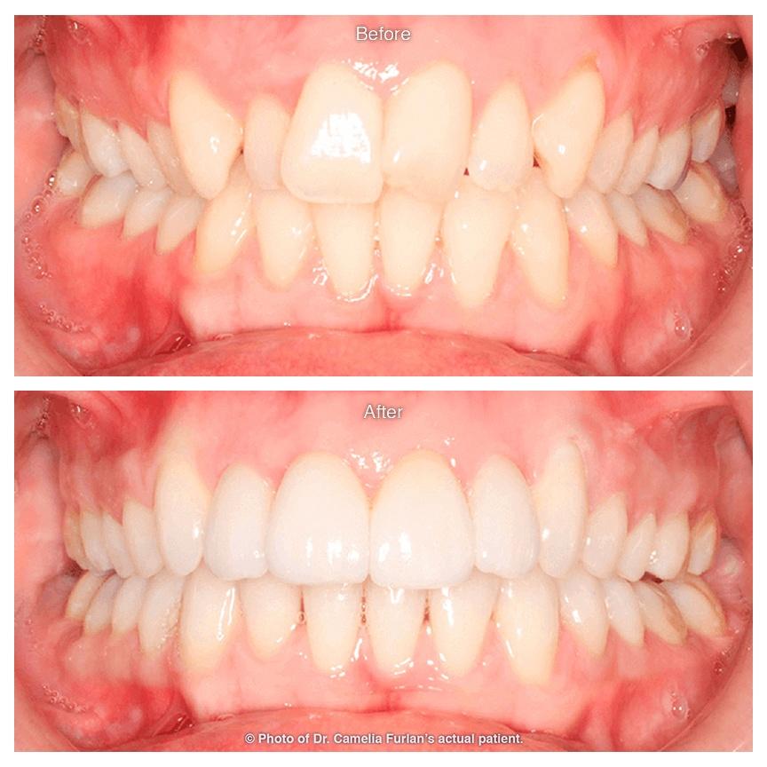 Teeth Straightened With Braces Orthodontics