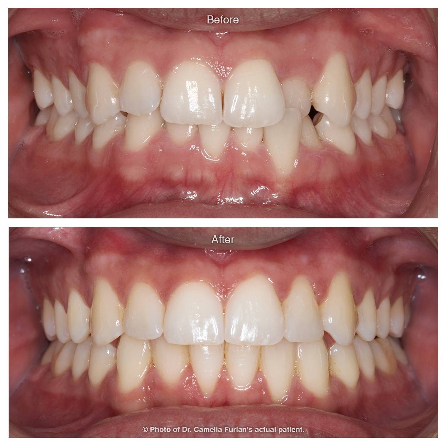 Invisalign Case Clear Braces 05