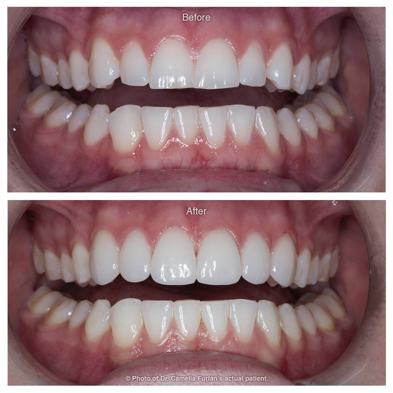 Invisalign Case Clear Braces 01